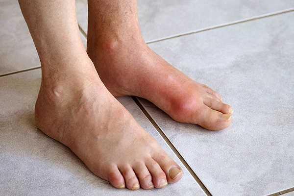 Bệnh tiểu đường kèm theo bệnh gout