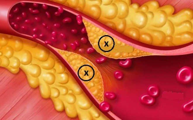 Bệnh tiểu đường mỡ máu