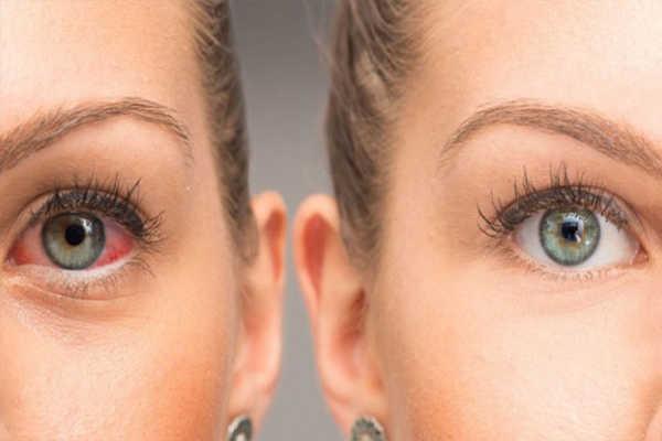 Bệnh về mắt do tiểu đường