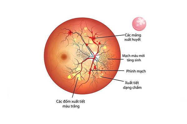 Bệnh về mắt do tiểu đường: Phù hoảng điểm tiểu đường