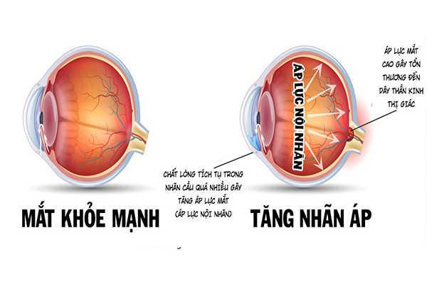 Bệnh về mắt do tiểu đường: tăng nhãn áp