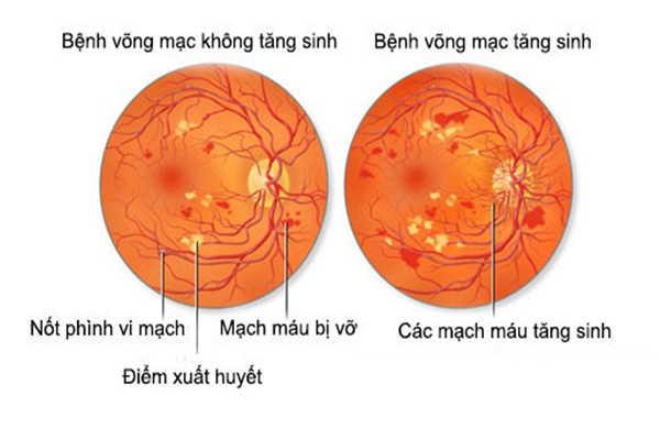 Bệnh về mắt do tiểu đường: