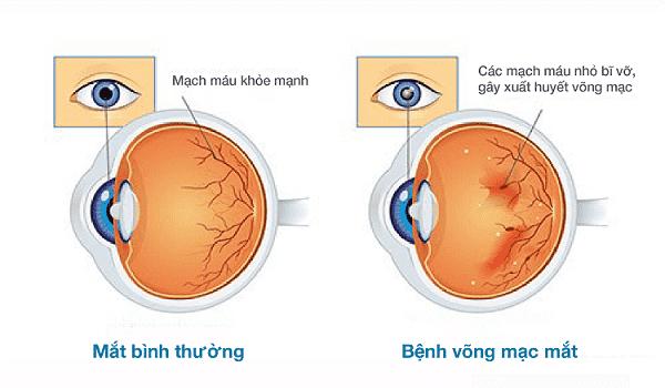 Biến chứng mờ mắt ở bệnh nhân tiểu đường