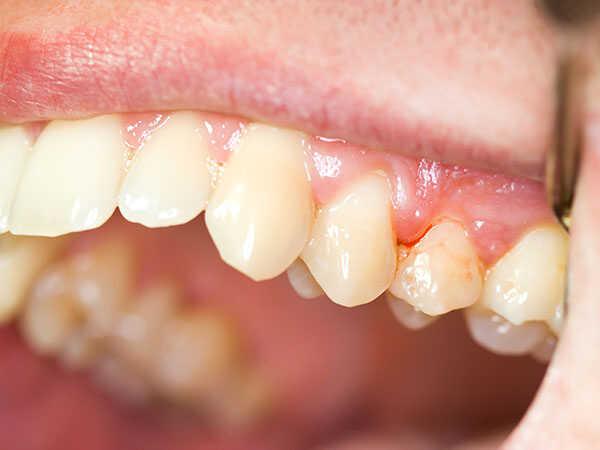 tiểu đường ảnh hưởng như thế nào lên răng