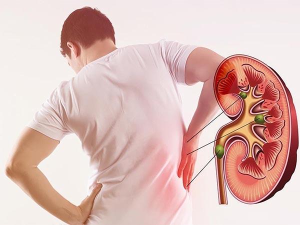 Tổn thương động mạch thận ở người bệnh đái tháo đường