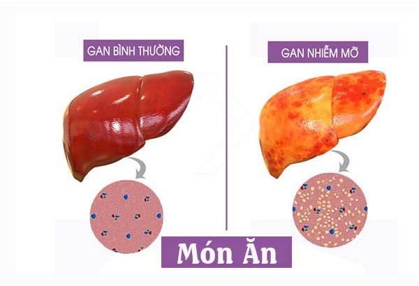 Những món ăn cho người tiểu đường kèm gan nhiễm mỡ