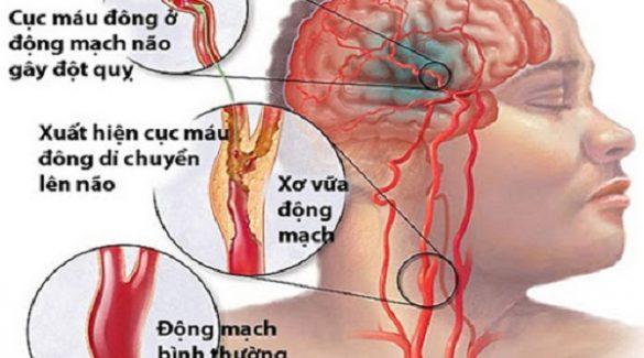 Những biểu hiện biến chứng tim mạch ở bệnh tiểu đường