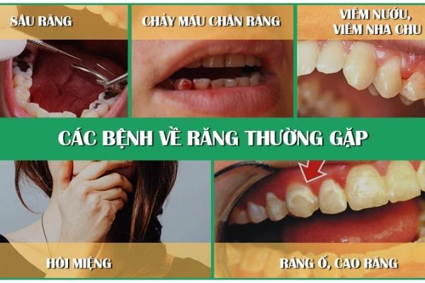 Những bệnh răng miệng ở người tiểu đường gây nên