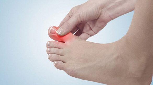 bàn chân ở người bệnh tiểu đường