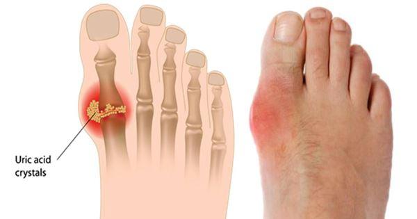 Bệnh gout có nguy cơ mắc bệnh tiểu đường