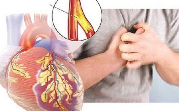 Biến chứng tim mạch ở người tiểu đường