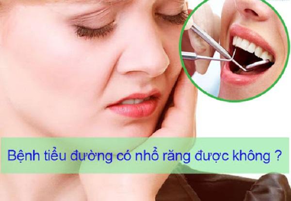 Bị bệnh tiểu đường có nhổ răng được không