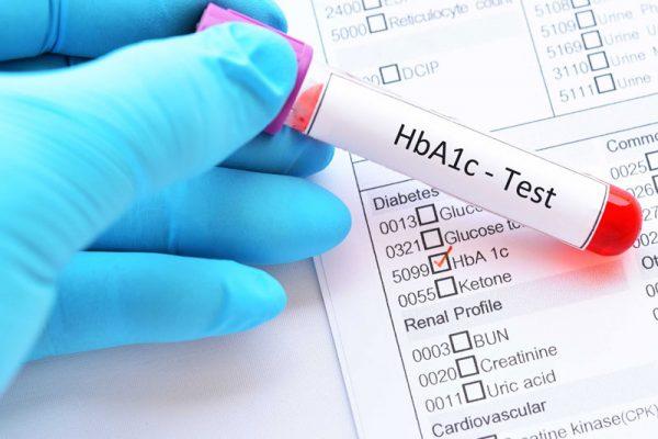 Xét nghiệm HbA1c là gì