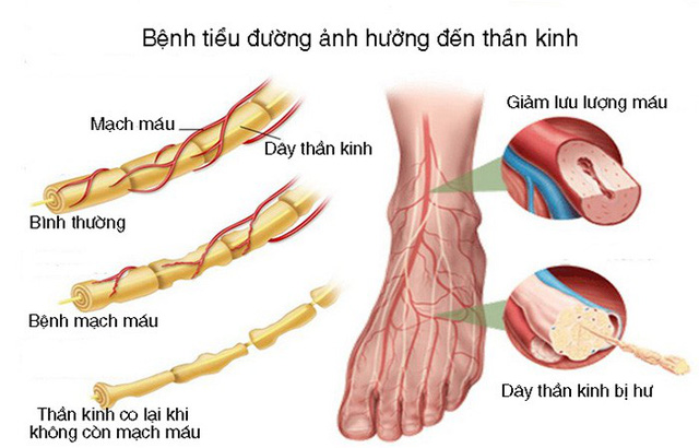 phòng ngừa hoại tử bàn chân