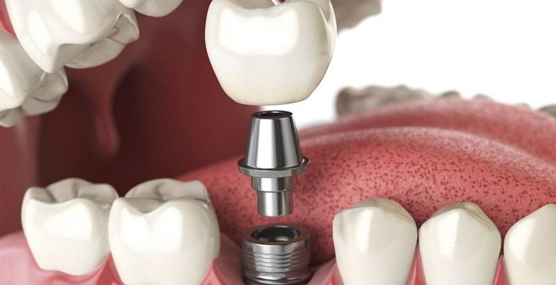 Người bị bệnh tiểu đường có cấy ghép răng được không?