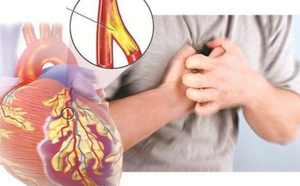 biến chứng mạch vành của bệnh tiểu đường