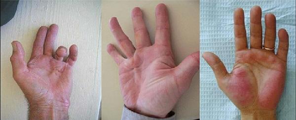 biến chứng bàn tay tiểu đường