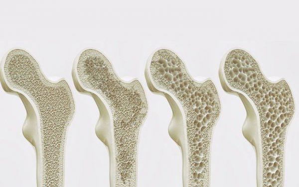 gãy xương ở người bệnh tiểu đường