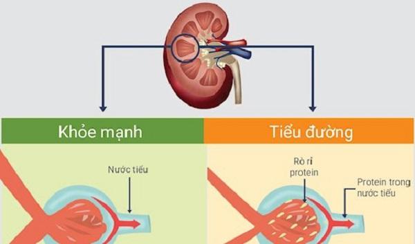 kiểm soát bệnh tiểu đường khi bị bệnh thận
