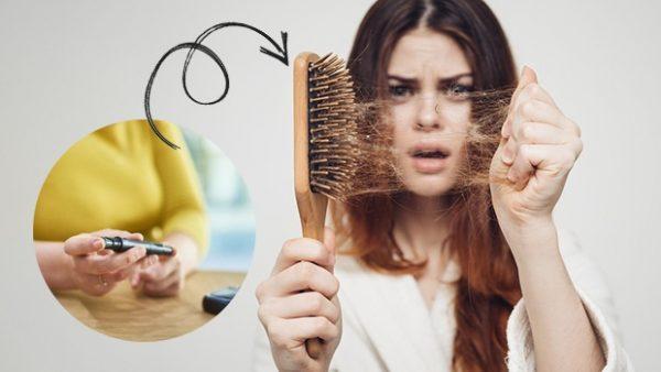 Làm sao giảm rụng tóc do biến chứng tiểu đường?