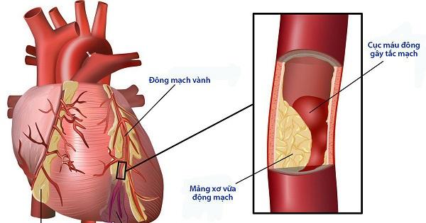 biến chứng mạch vành ở người bệnh tiểu đường