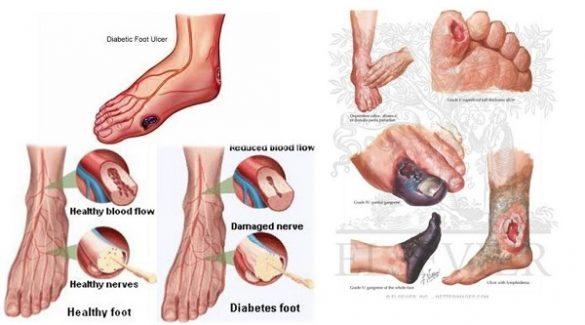 Cách chăm sóc bàn chân tiểu đường, tránh loét và hoại tử