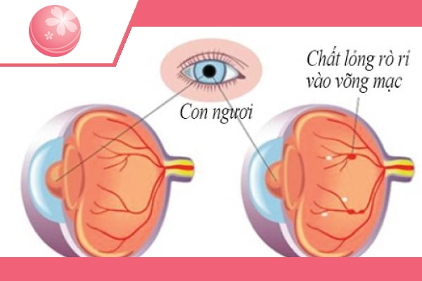 giảm nguy cơ mù lòa ở bệnh nhân tiểu đường