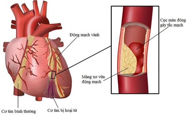 các biến chứng tim mạch do đái tháo đường