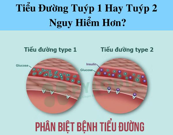 Tiểu đường tuýp 1 hay tuýp 2 nguy hiểm hơn?