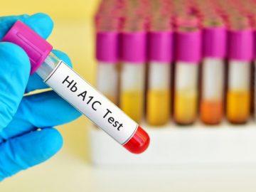 Tiêu chuẩn chẩn đoán tiểu đường type 1